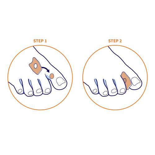 Cerotti callifughi per dita dei piedi con 40% di Acido Salicilico 6 pz